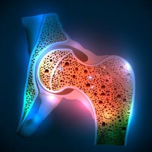 OSTEOPOROSI1